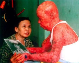 Major Tự Đức Phang was exposed to dioxin-contaminated Agent Orange. By Source, Fair use, https://en.wikipedia.org/w/index.php?curid=28756717